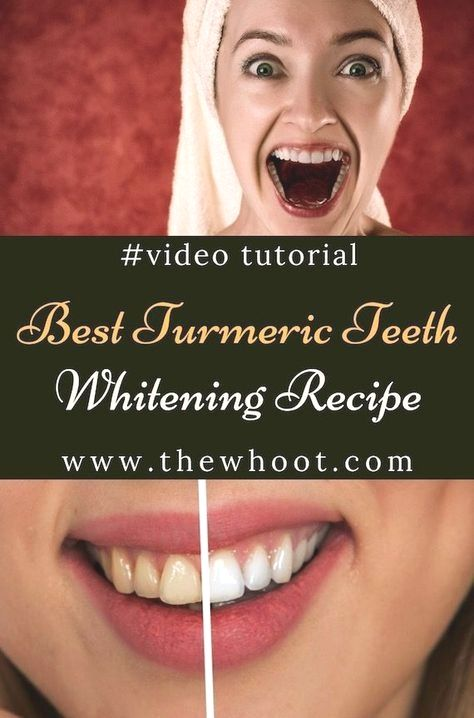 how exactly to whiten teeth with hydrogen peroxide coconut engine oil and turned on charcoal teeth whitening