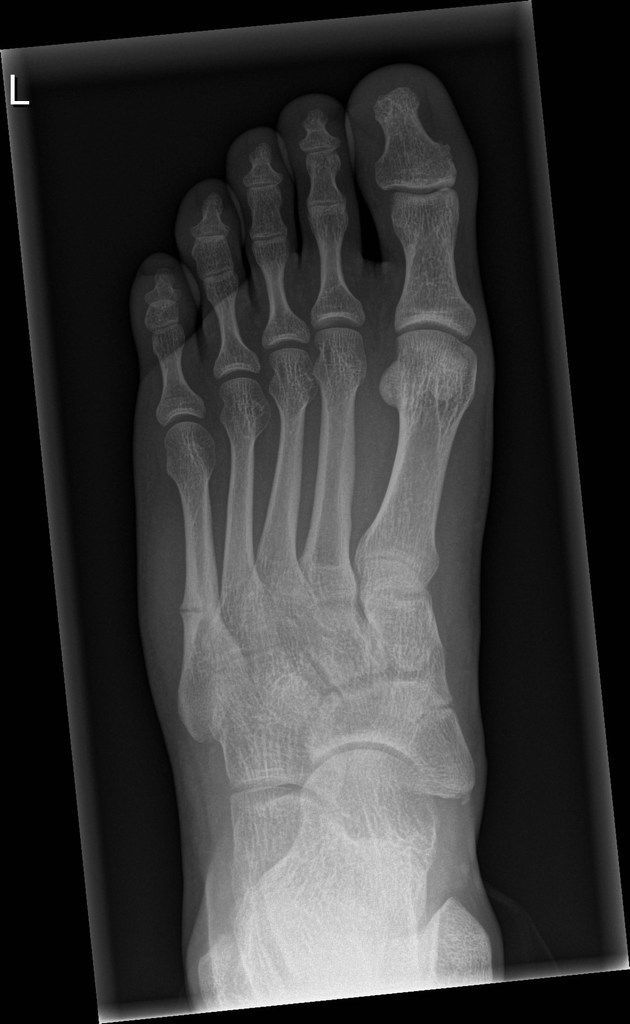 Stress Fracture Of Fifth Metatarsal Radiology Case Http Radiopaedia Org Stress Fracture Radiology Avulsion Fracture