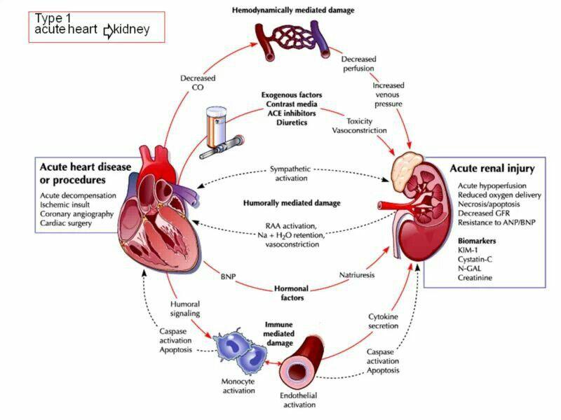 Pin By Anas Zein Alaabdin On Medicine Heart Failure Heart Disorders Acute Renal Failure