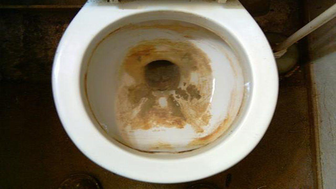5 prácticos trucos para eliminar el sarro del inodoro ...