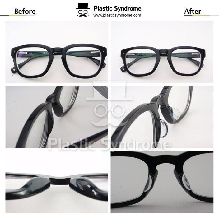 Costomize Plastic nose pads - Plastic Syndrome. Glasses & Sunglasses ...