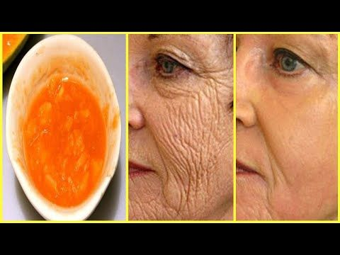 Apply This Mask - Remove Wrinkles On Your Face And Make You Look Younger Than 10 Age - YouTube