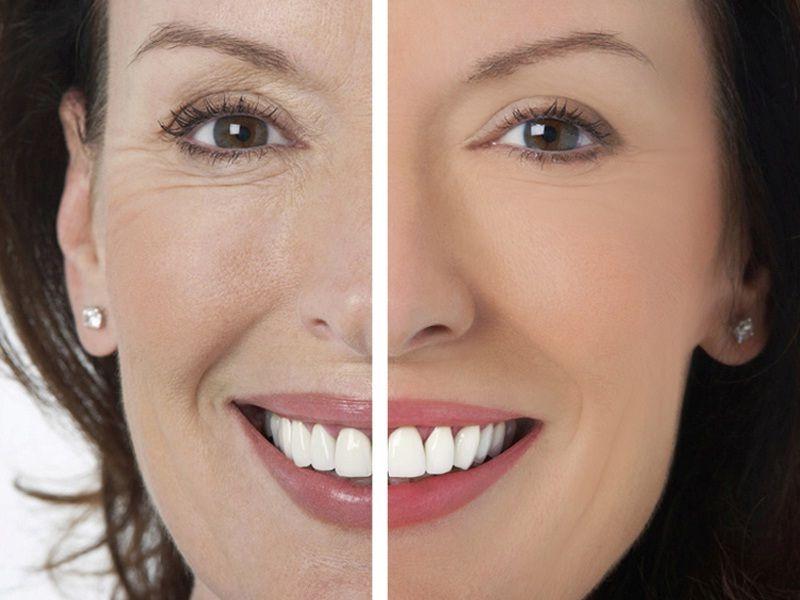 как уменьшить носогубные морщины без операции