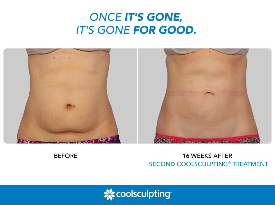 Pin by CoolSculpting on Before & After | Cool sculpting