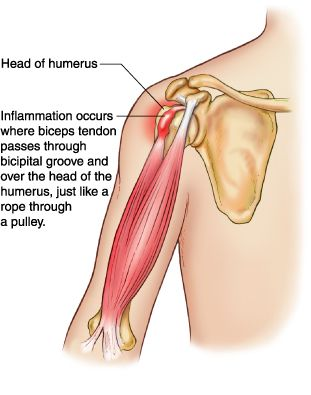 Tendinitis Can Happen Anywhere Commonly Occurring Near The Major