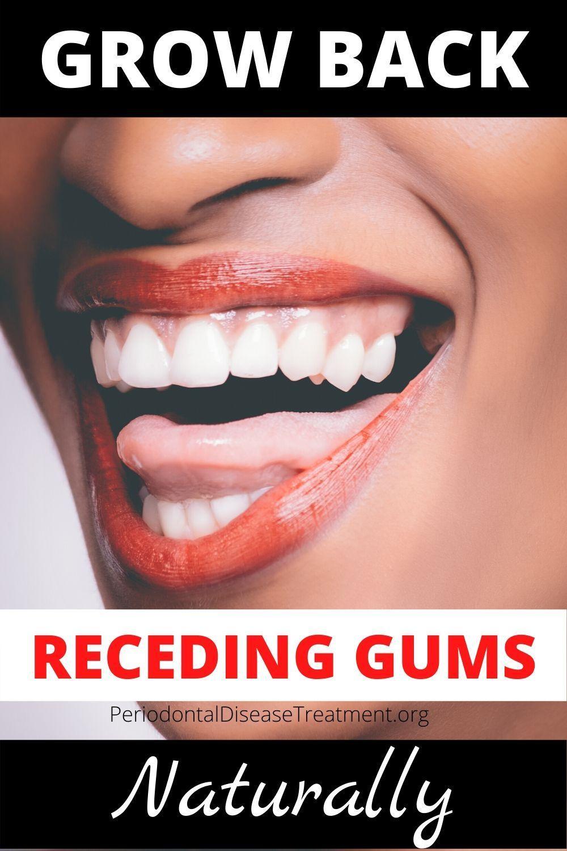 Essential Oils for Receding Gums in 2020 Gum disease