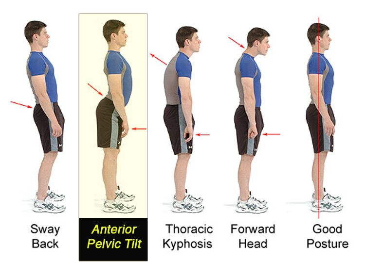 Anterior pelvic tilt affects almost anyone who sits a lot. Practically,  your butt sticks