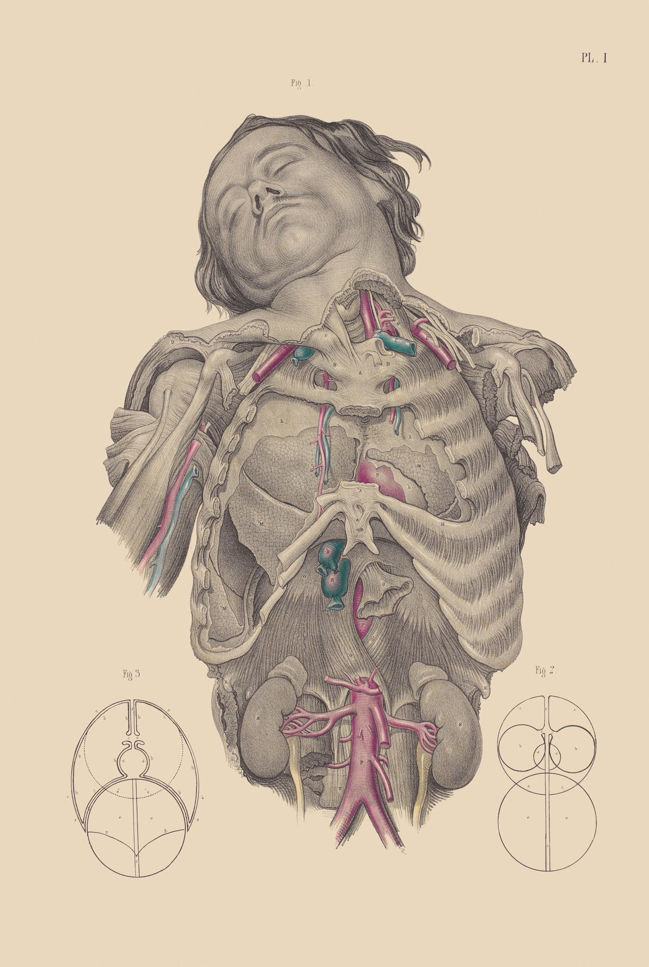 Gruesome And Surreal Surgical Illustrations From The 15th19th