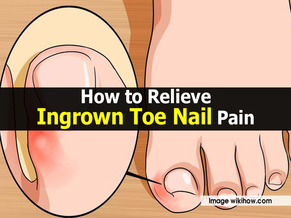 0ddb0738d1f17e0fefd2a706cf146e30 - How To Get An Ingrown Toenail Out Without It Hurting