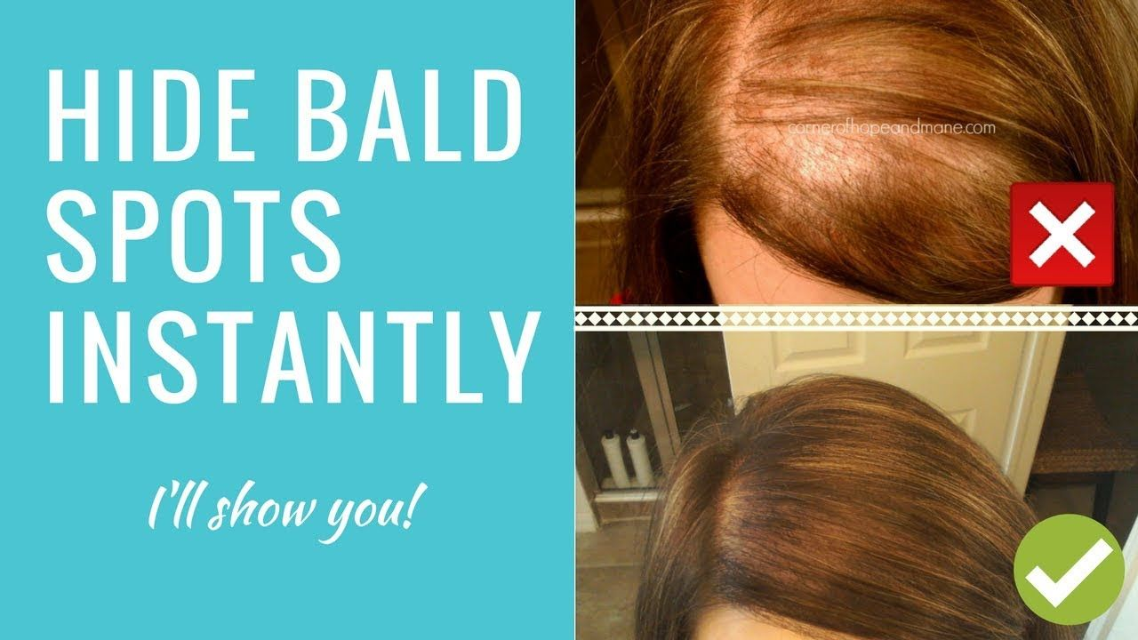 How To Cover Up Bald Spots