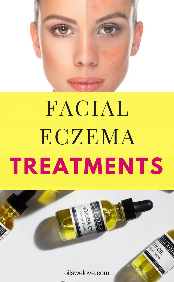 40 Natural Eczema Treatments Remedies Facial Eczema Natural Eczema Treatment Face Eczema