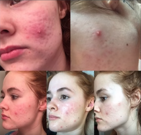 Accutane scalp irritation medication