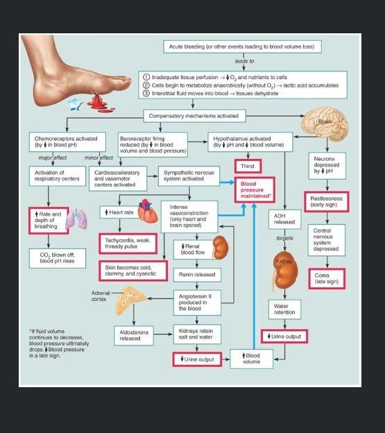 hypovolemic shock | nursing mnemonics | pinterest, Skeleton