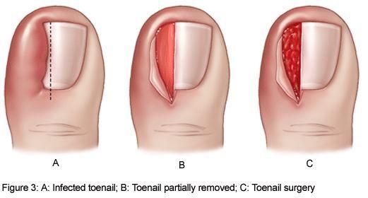ingrown toenail surgery #astepabovefootcare #wecanhelp #happyfeet ...