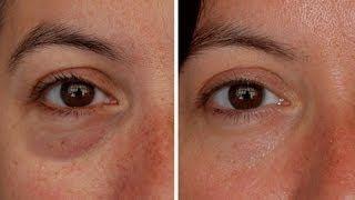Massage away facial puffiness