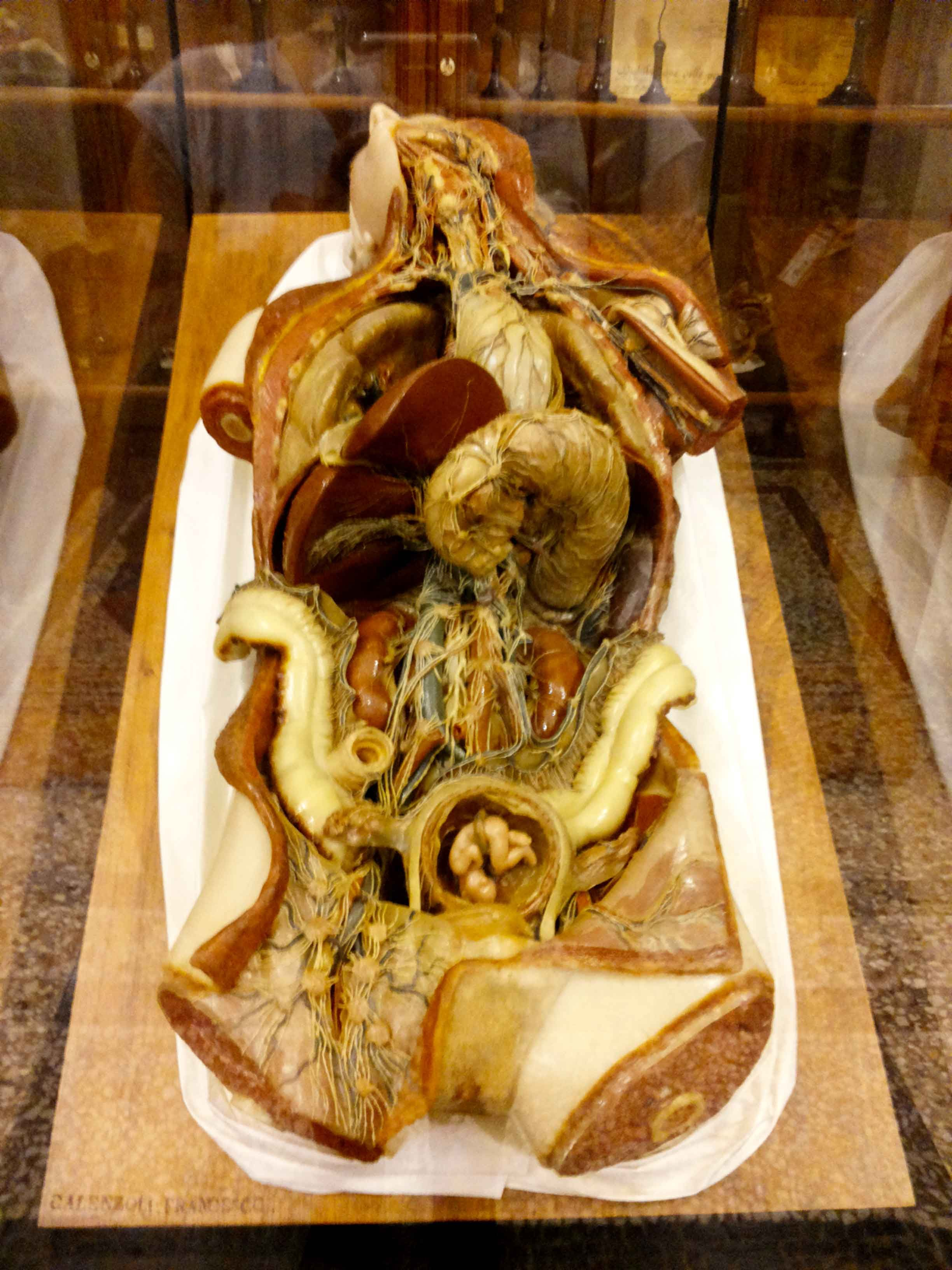 Museo Di Anatomia Umana Di Torino Others Anatomy Human Anatomy