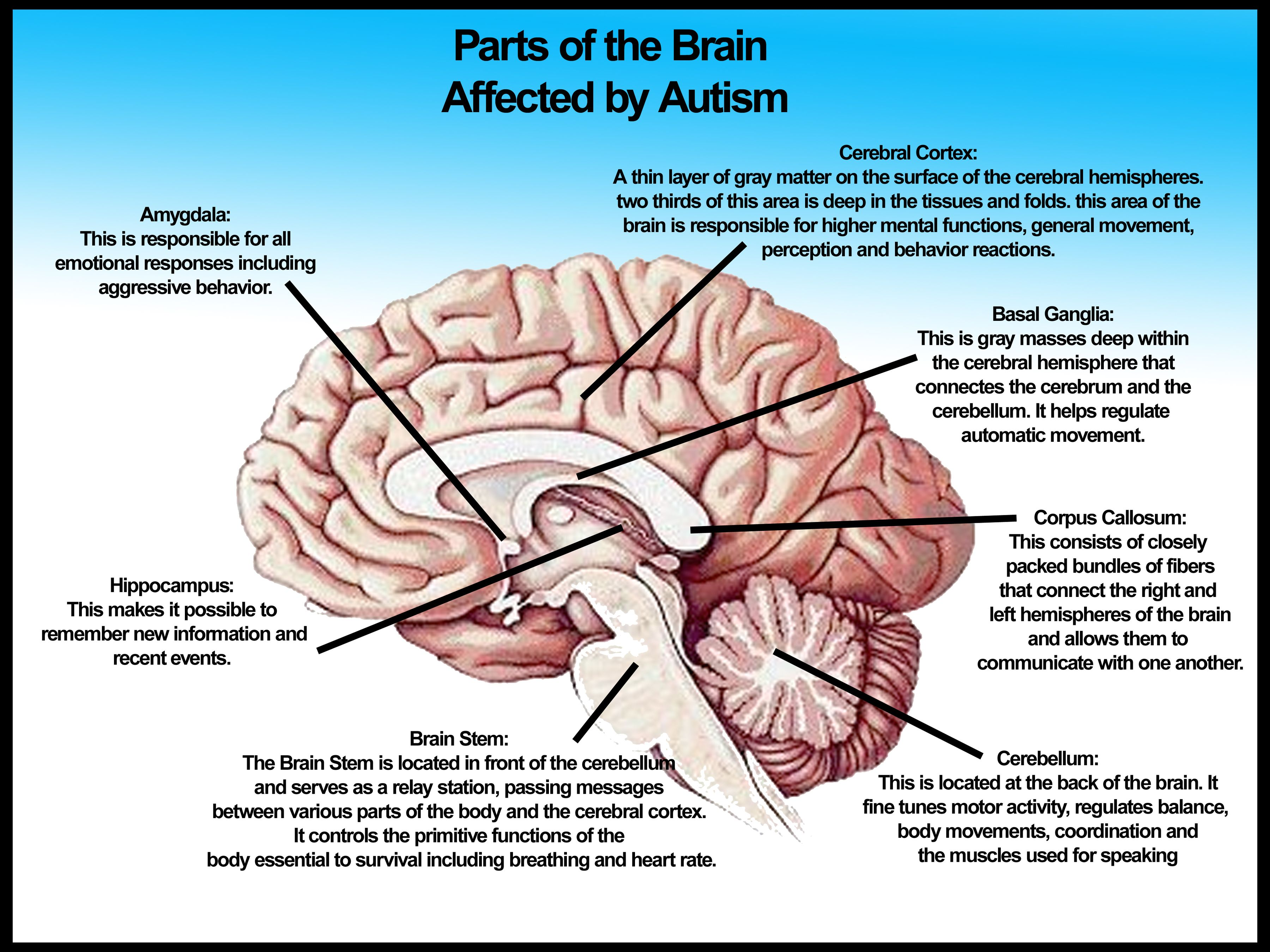Parts of the Brain Affected by Autism | See best ideas about Logos ...