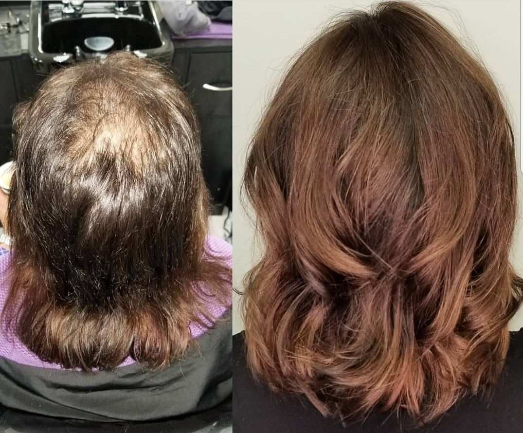 Trichotillomania Hair Replacement System Hair Loss Solutions Hair Restoration Hairstyles For Thin Hair Hair Loss Solutions