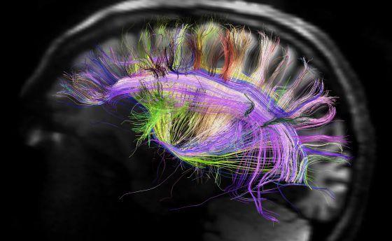El cerebro, elegantemente simple. Espectacular imagen de las fibras neuronales del cerebro, via @oriol_roca