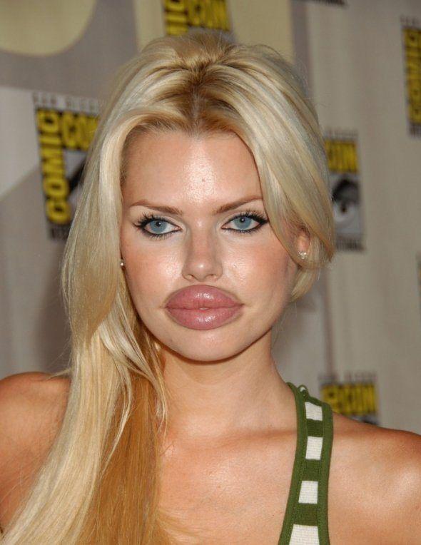 plastic lips Bad surgery