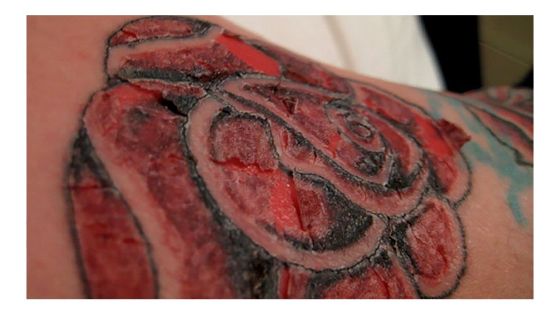 Best Inks For Tattoos Gallery In 2020 Allergic Reaction To Tattoo Tattoo Ink Allergy