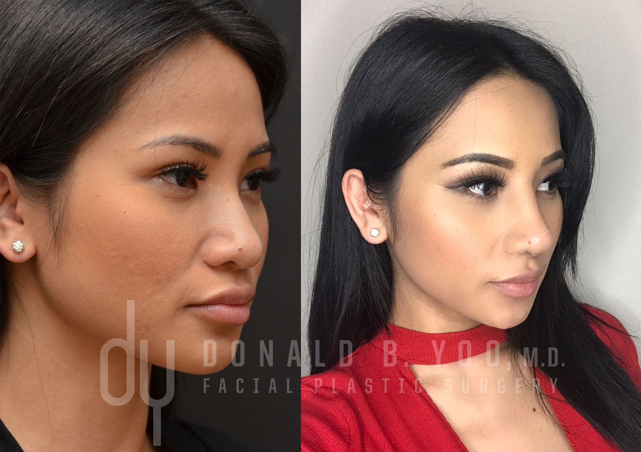 Before and after revision asian rhinoplasty with rib