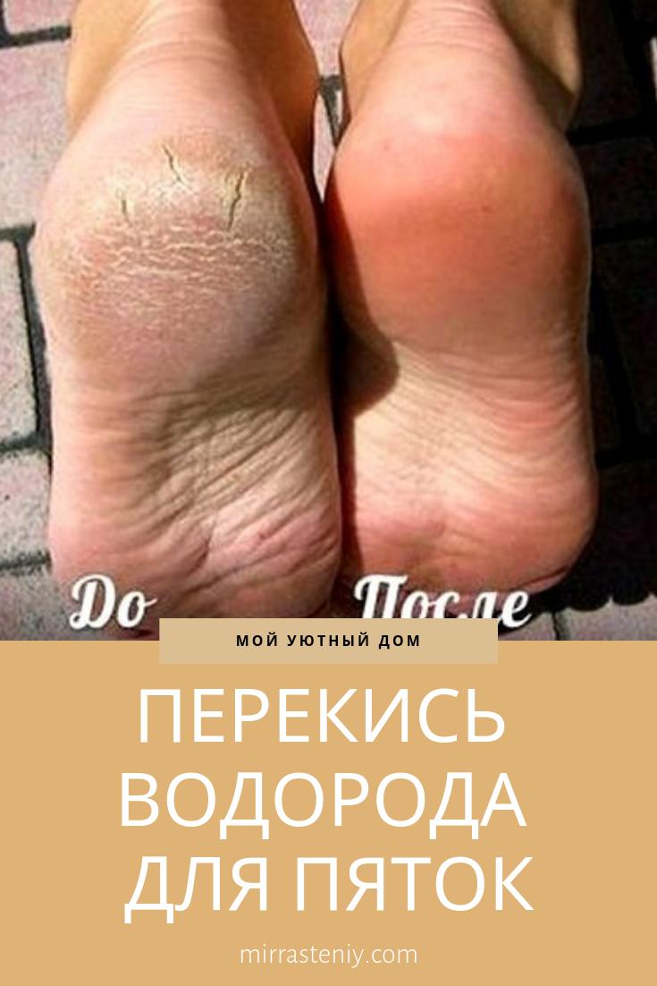 varicoză ierburi)