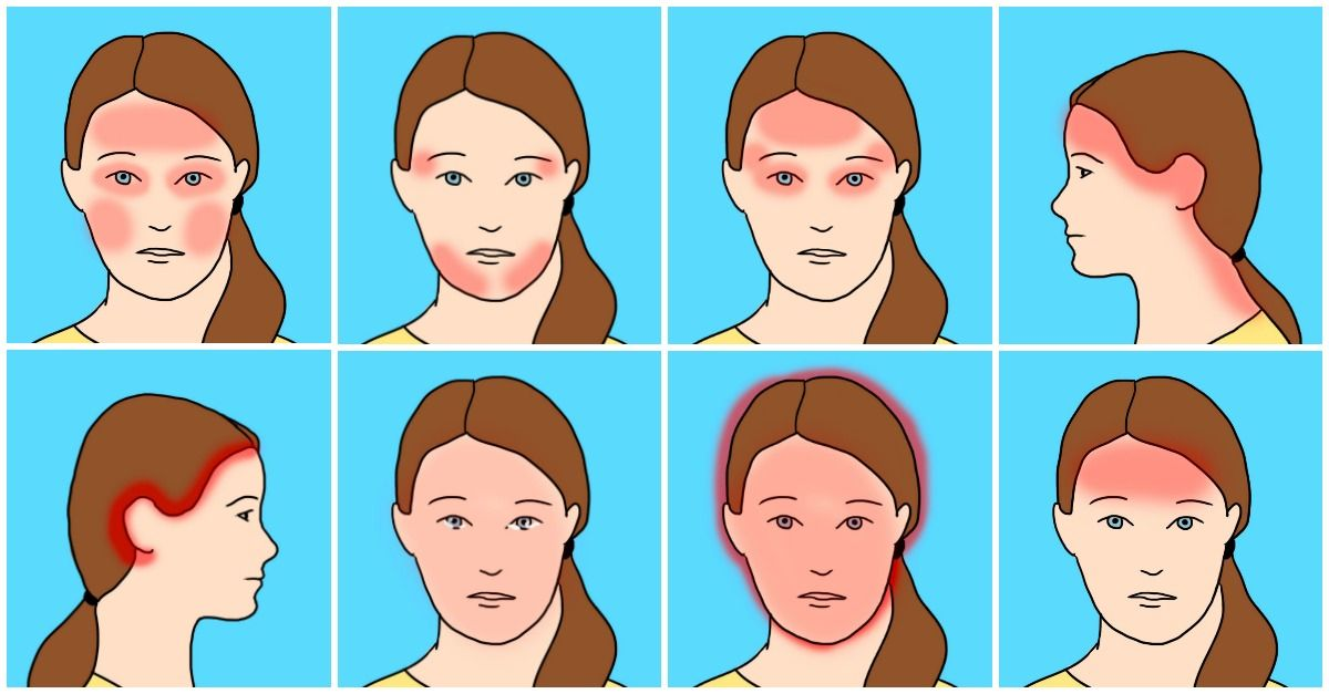 10 Common Headache Types And Their Unexpected Causes | Headache ...