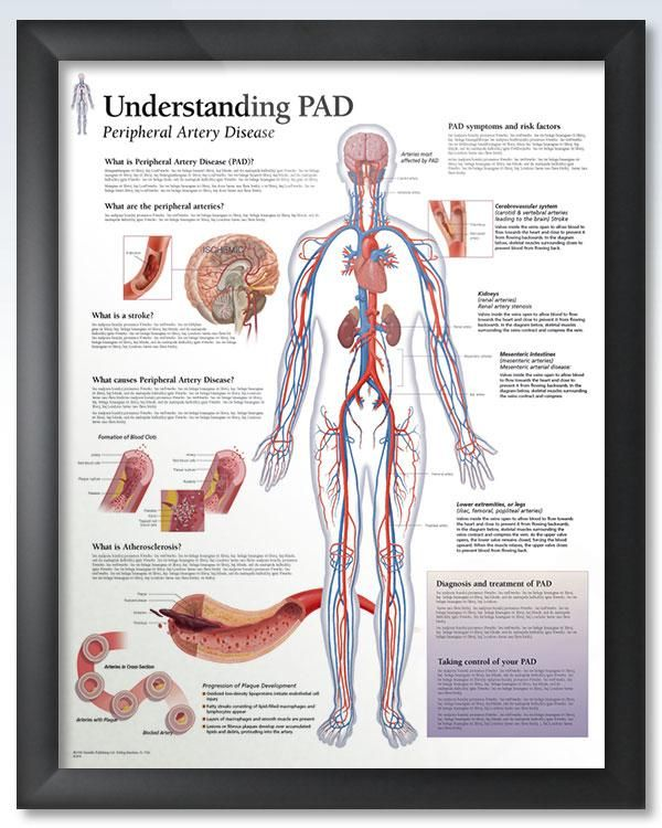 Understanding PAD 22x28 | Peripheral artery disease and Products