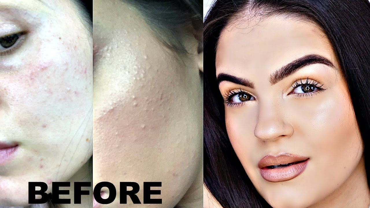 How To Get Rid Of Textured Skin Keratosis Pilaris Acne Milia Natural Anti Aging Skin Care Skin Acne Treatment Daily Natural Skin Care Routine