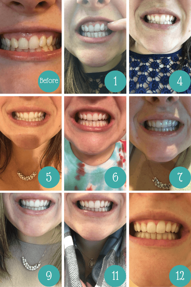 Clear Aligners Smile Direct Club Images