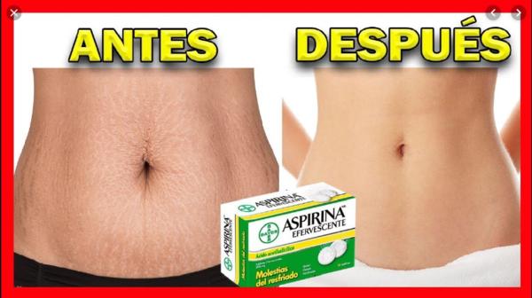 Aspirina Para Disminuir Las Estrías En Solo 7 Noches Skin Tips Youtube Skin