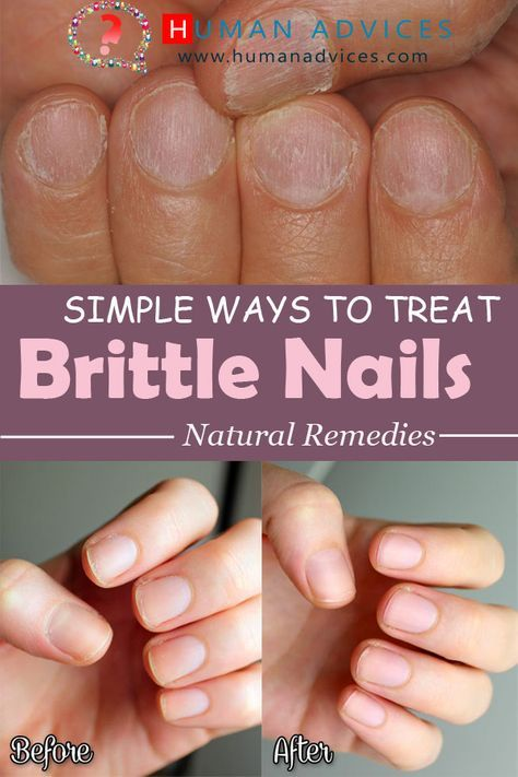 Simple Ways to Treat Brittle Nails – Human Advices | nails ...