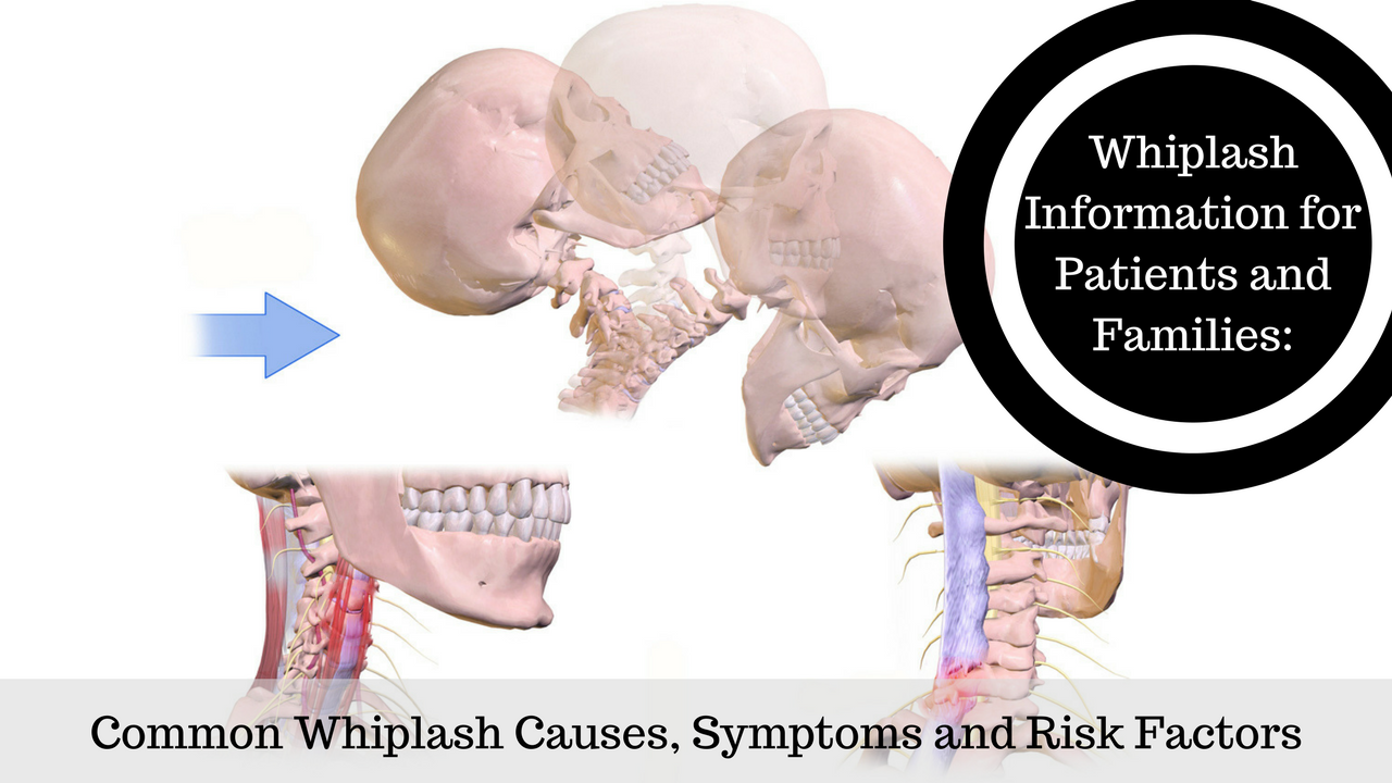 Whiplash Is A Soft Tissue Cervical Spine Neck Region Injury This