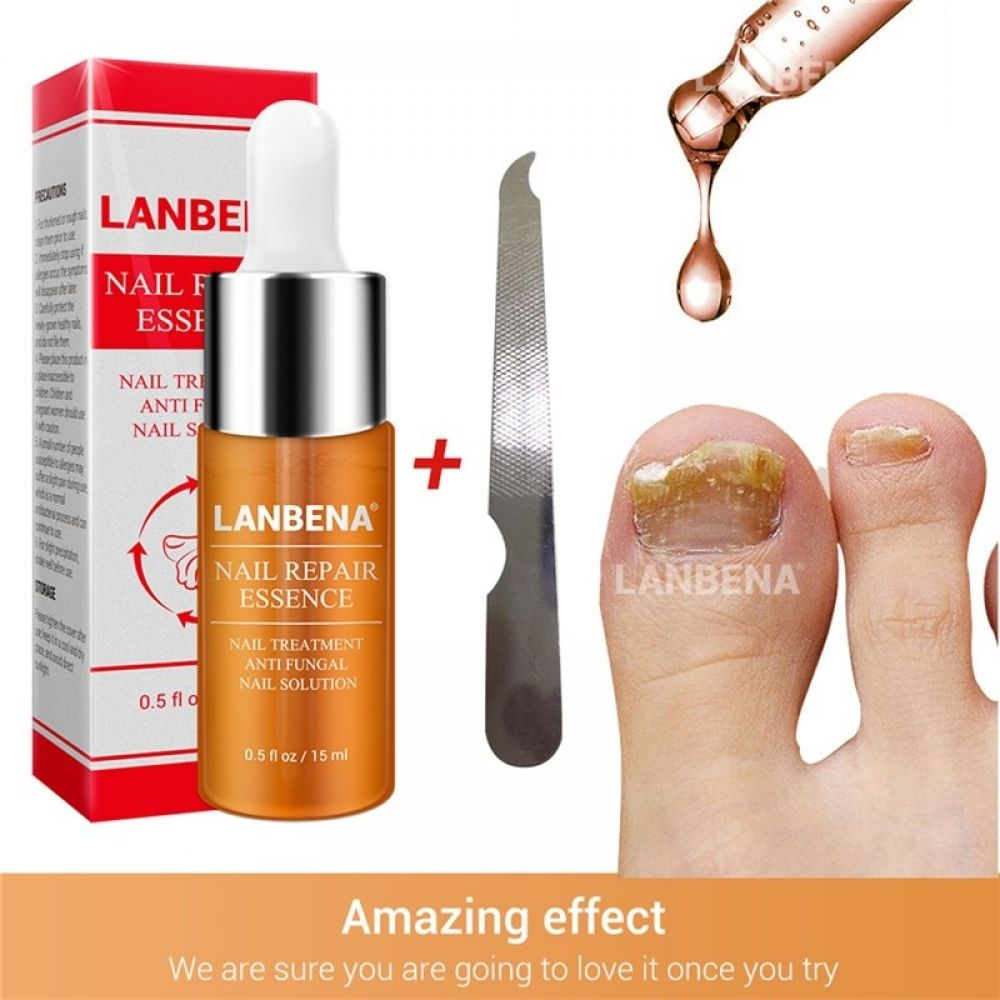 Nail Treatment Cream Bright Fungal Nail Repair Onychomycosis Removal Essence Foot Care Anti Infection Foot Nail Care