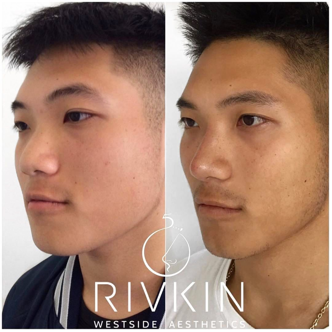 Pin on Dr. Rivkin's Non Surgical Nose Job