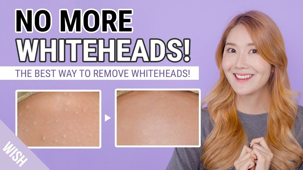 How To Remove Whiteheads Small Bumps Whitehead Removal To Prevention Whitehead Removal Whiteheads Remedy Whiteheads