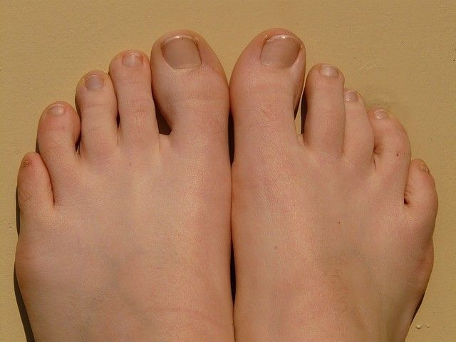How Much Does Ingrown Toenail Surgery Cost | How Coster | Pinterest ...
