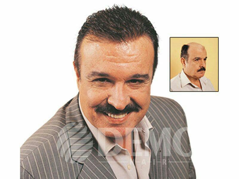 Protez Sac Kullanan Unluler Www Demohair Com Istanbul Sisli Sac