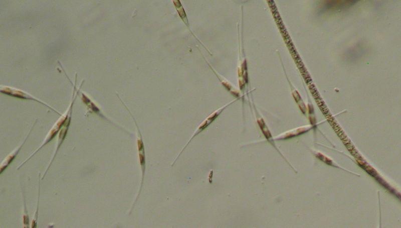 Image result for diatoms under microscope 400x thames pinterest