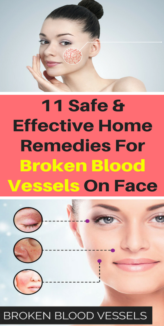 How To Get Rid Of Broken Veins On Face