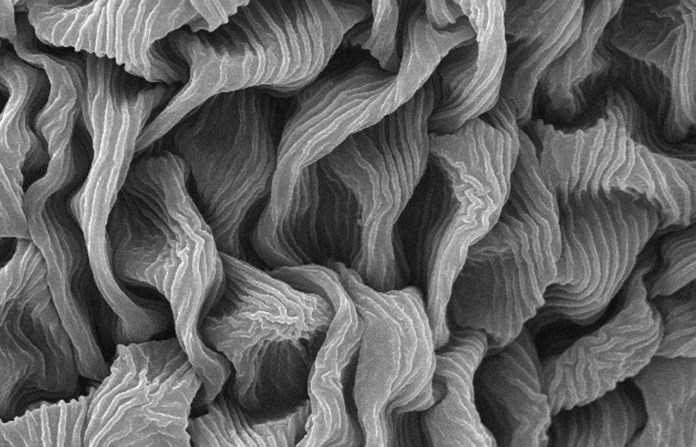 """Under a magnification of 1438x, this scanning electron micrograph reveals some of the ultrastructural details seen on the surface of a """"crimson clover"""", Trifolium incarnatum flower petal."""