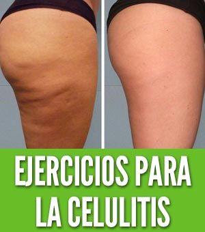 Pin En Ejercicios Celulitis