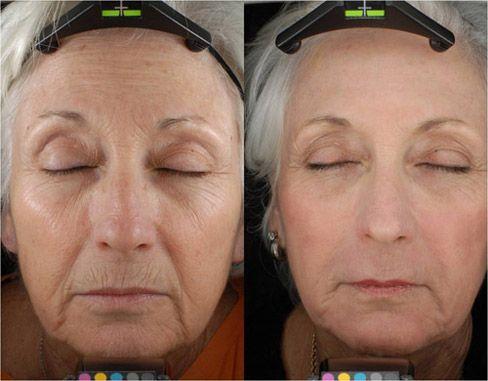C02 Fractional Laser Lowdown Skintighteningsage Com Laser Skin Resurfacing Laser Resurfacing Fractional Co2 Laser