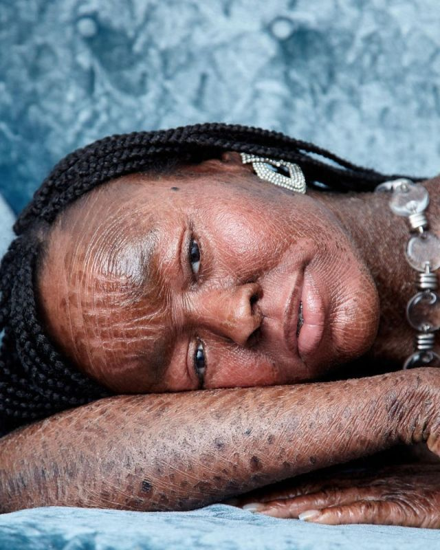 Famous Ichthyosis Model Jeyza Gary on Achieving Su