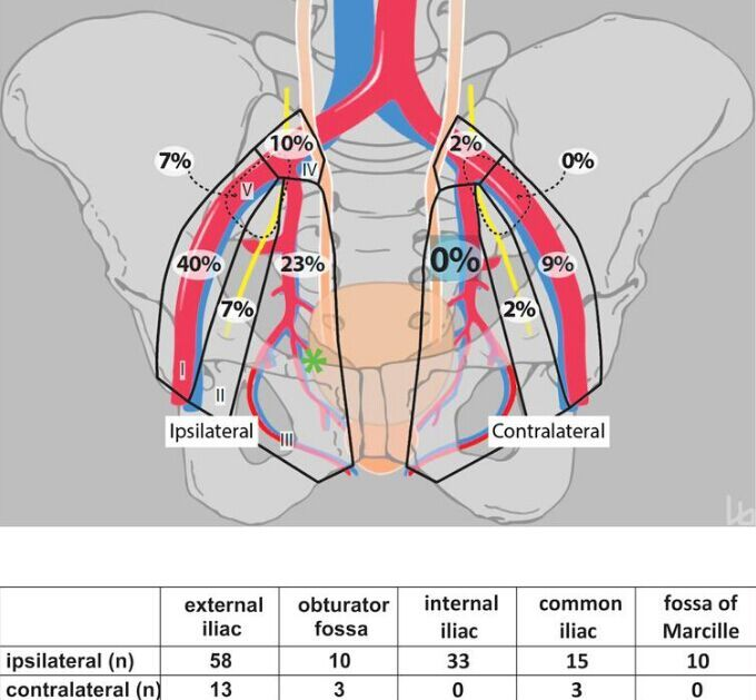 Lymph node metastases area in pelvic area | Anatomy note world ...