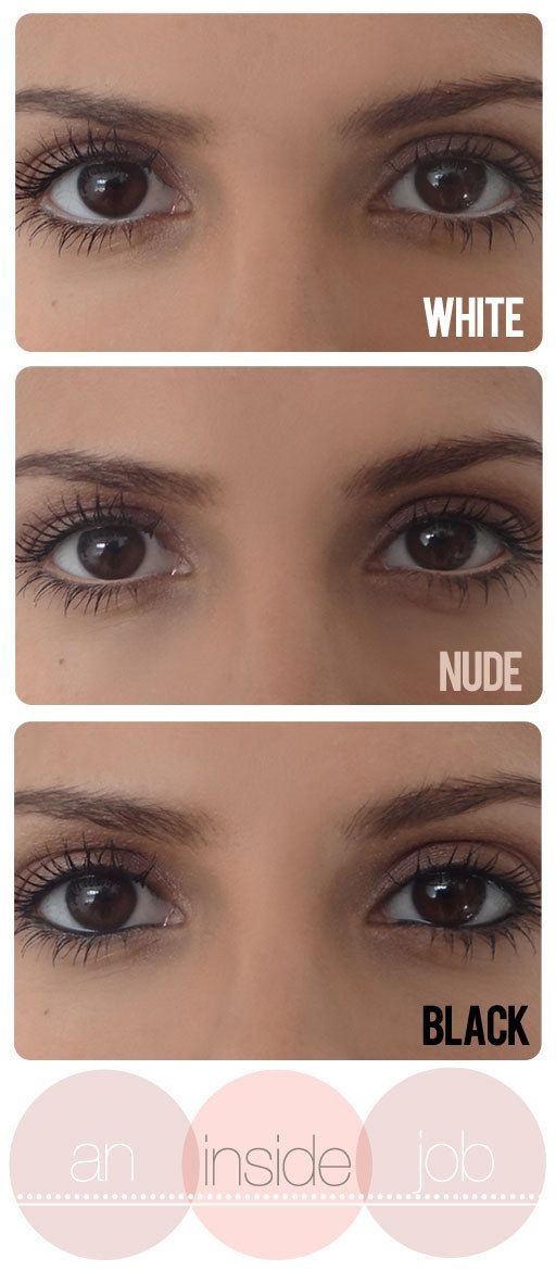 19 Ways To Deal With Dark Circles And Under-Eye Bags | Circles ...
