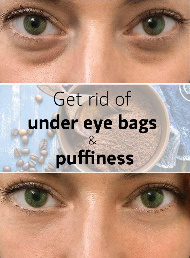 Get rid of under eye bags   Under eye bags Eyes Puffy eyes