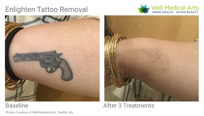 More Awesome Results With Our Cutera Enlighten Tattoo Removal