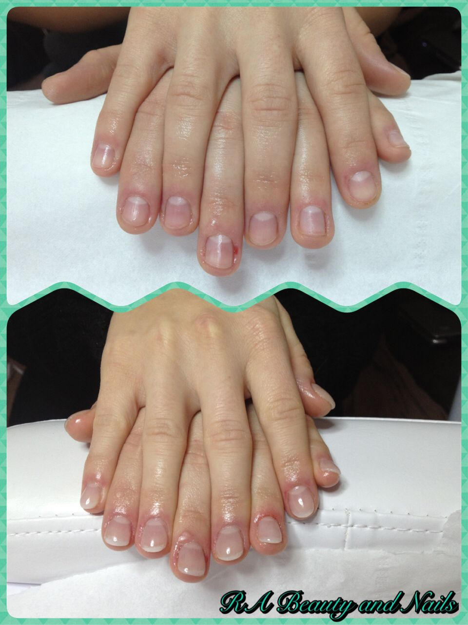 Natural Tip Acrylic Overlay Enhancement For Short Bitten Nails Products Used Nail